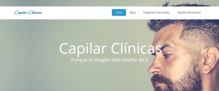 las mejores clinicas capilares de españa Estas son las mejores clínicas de injerto y trasplante capilar de España